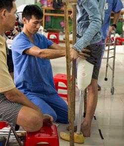 Mercer Engineering Fitting Prosthetic Limbs